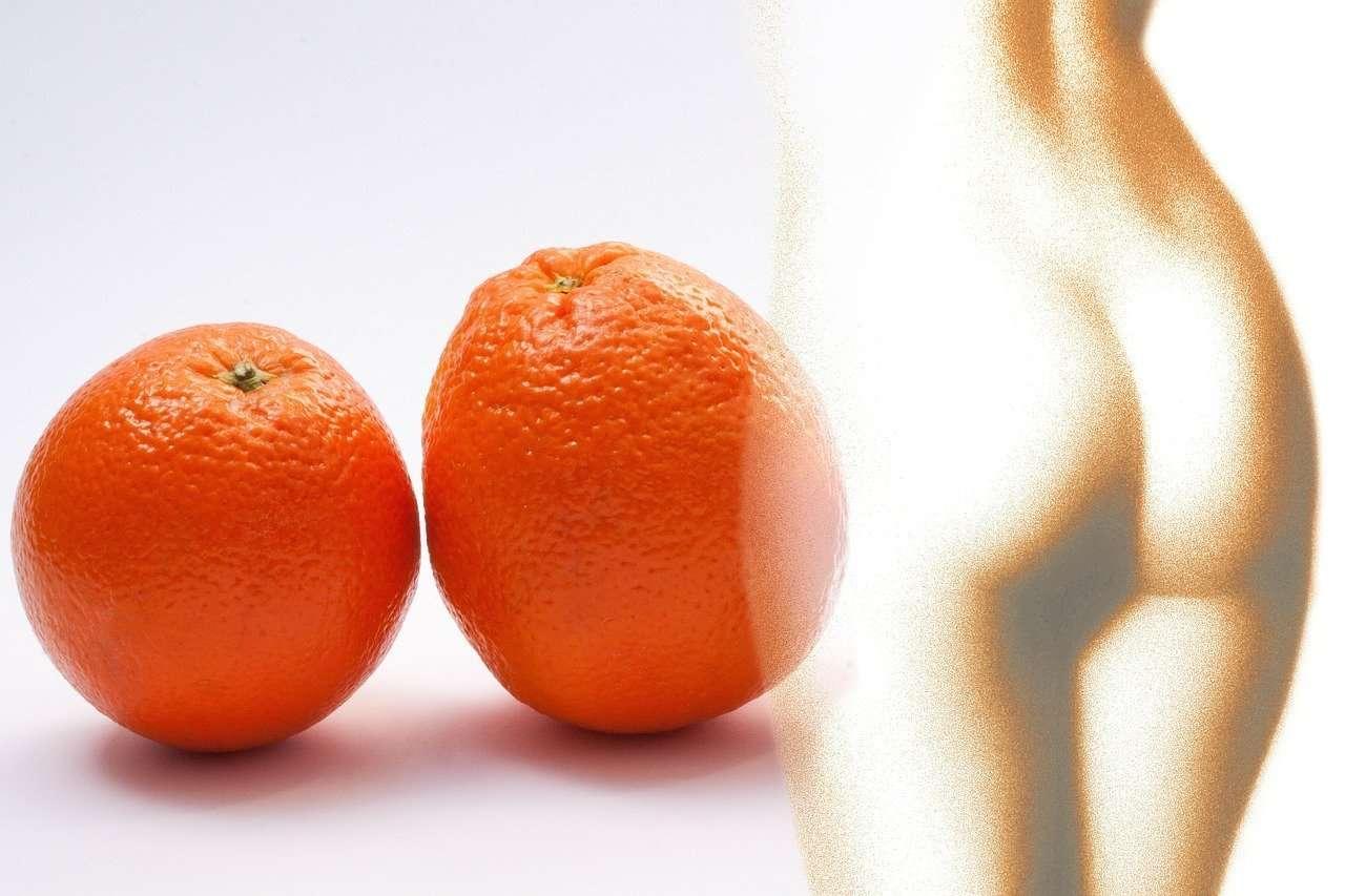 Dies hilft gegen Cellulite (Orangenschale)
